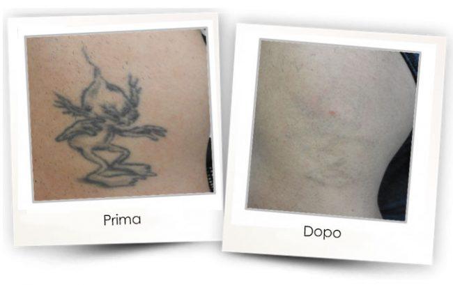 Rimozione tatuaggi - LCM - La Clinica Milano By AlmaCare